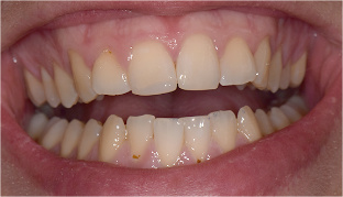 Chipped-tooth-after
