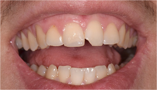 Chipped-tooth-before
